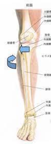 下腿外旋症候群